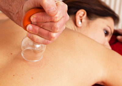 Faszien- und Cellulite-Massage mit Schröpfgläsern